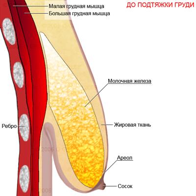 Что нужно знать о маммопластике