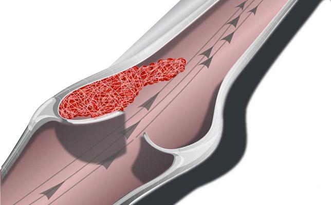 Оральные контрацептивы, содержащие дроспиренон: потенциально повышенный риск возникновения тромбов