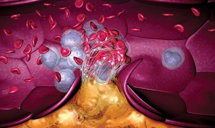 Повышение риска образования тромбов может быть связано с приемом противозачаточных средств