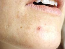Стресс приводит к появлению угревой сыпи у взрослых женщин