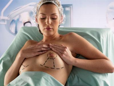 Основные виды маммопластики