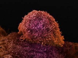 Рак предстательной железы или простаты