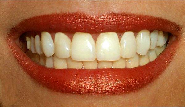 Фруктовый сок разрушает зубы