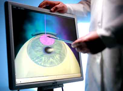Частичная коррекция зрения может быть опасной