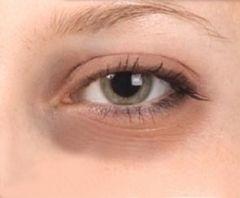 Как бороться с мешками под глазами?