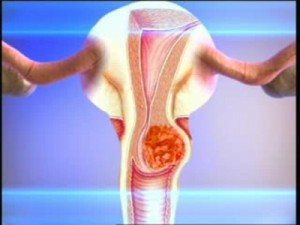 Как уберечь себя от рака шейки матки?