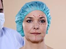 Хирурги предлагают помолодеть на несколько лет с помощью всего одной операции