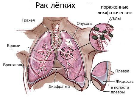Хронические болезни легких не всегда провоцируют развитие рака