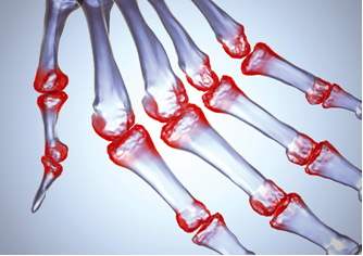 Артралгия: причины и лечение