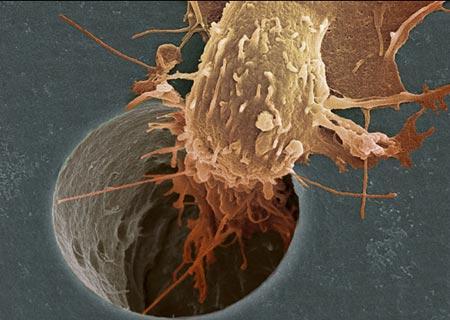 Физики и биологи совместными усилиями установили, как распространяется рак