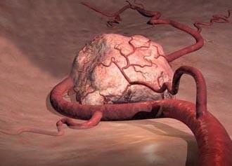 Установлено, как раковые клетки сопротивляются лекарствам