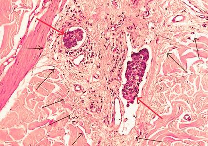 Ученые научились повышать восприимчивость раковых клеток к химиотерапии