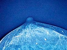 Онкологи выяснили, как победить устойчивый рак груди