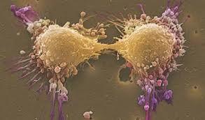 Рак простаты теперь можно выявить с помощью биопсии