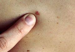 Рак кожи побежден?