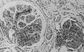 Гломерулонефрит: этиология и причины возникновения