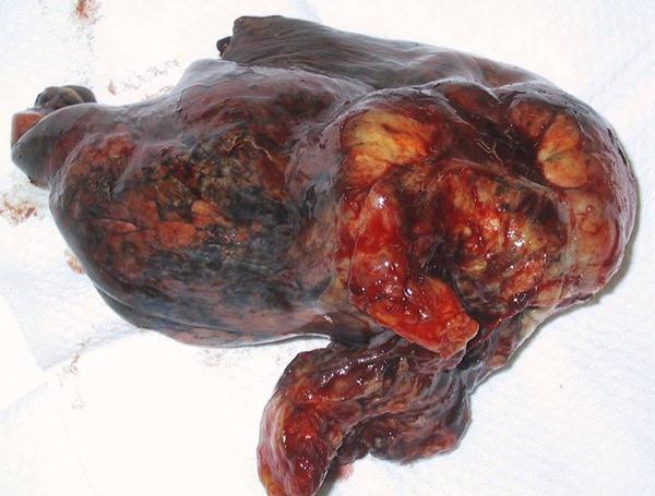 Рак легких может возникнуть и у некурящих