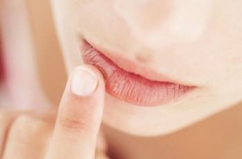 Как быть с потрескавшимися губами