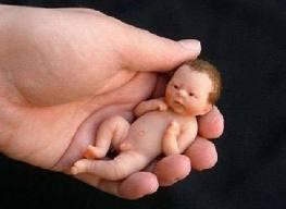Врожденный сифилис ребенка