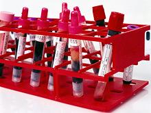 Сколковские ученые представили эффективную методику лечения рака