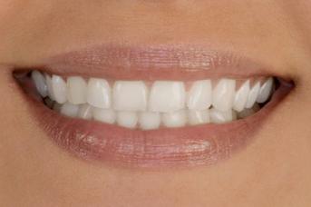 Металлокерамика сохранит красоту улыбки на долгие годы
