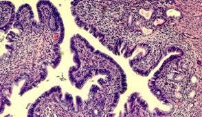 Эндометриоз передается по наследству
