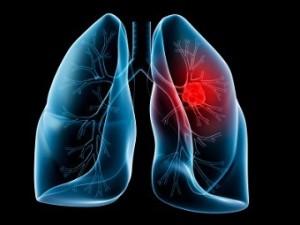 ВОЗ назвала самый распространенный и смертельный вид рака в мире