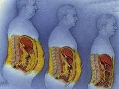 От диабета умирают самые худые и толстые