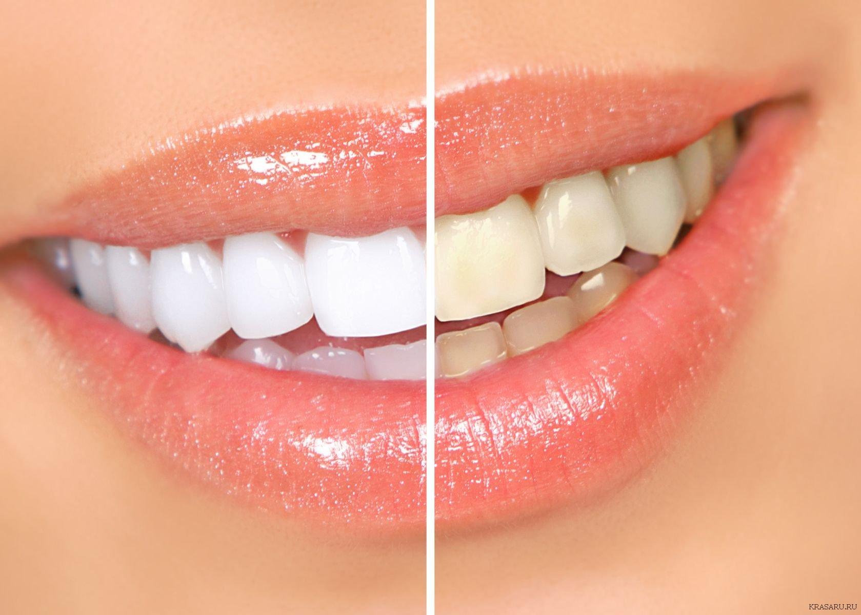 Виды и методы отбеливания зубов