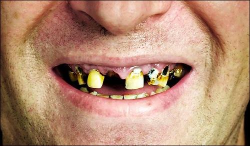Зубы напрямую связаны с простатитом