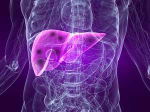 Рак печени — диагностика и лечение в «ЛIСОД»