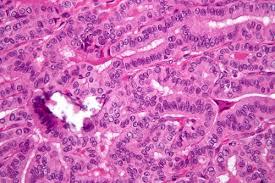 Успешно испытана вакцина против рака поджелудочной железы
