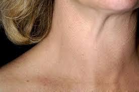 Щитовидная железа, щитовидка