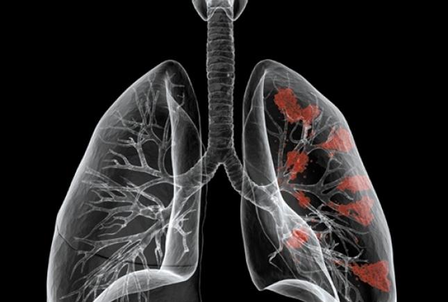 Диагностика рака легких упрощается