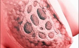 6 мифов о раке груди