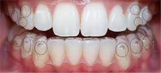 Invisalign — эффективная технология для лечения неровных зубов