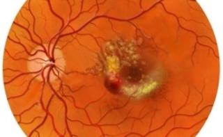 Впервые за последние 25 лет появилось лекарство для лечения диабетического макулярного отека
