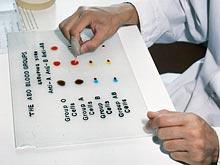 Группа крови показывает риск развития диабета, показал тест