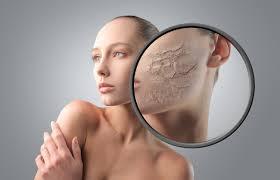 Народные рецепты для сухой кожи лица
