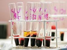 Новый тест позволит диагностировать рак груди на ранних стадиях