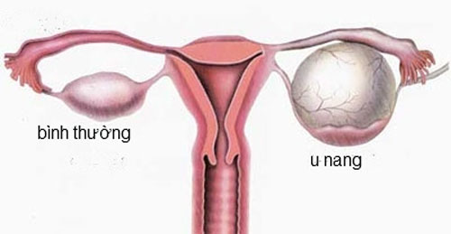 Элевация матки
