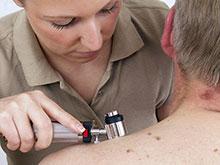 Онкологи разработали простой метод оценки личного риска рака кожи
