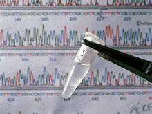ДНК помогает предсказать приход менопаузы, выяснили ученые