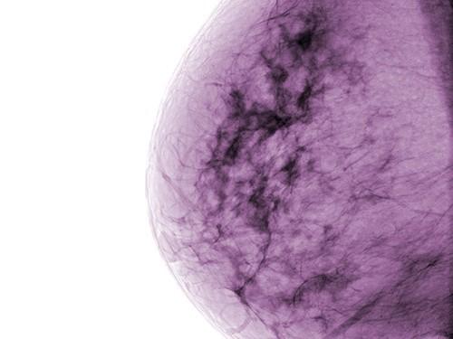 Маммография в комбинации с УЗИ позволит эффективнее выявлять опухоли молочной железы