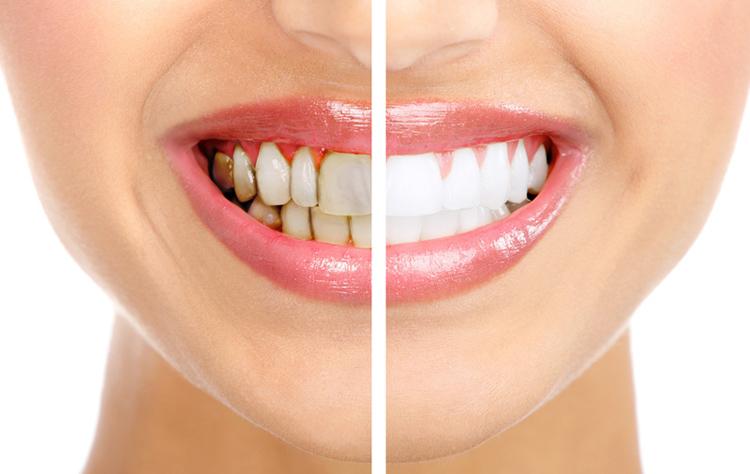 Как правильно очистить зубы от зубного камня