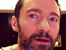 Актер Хью Джекман продолжает активную борьбу с раком кожи