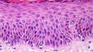 Клетки кожи способны победить рак