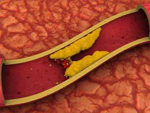 Препараты для снижения холестерина помогут при раке простаты
