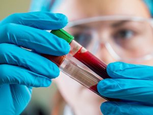 Анализ крови поможет обнаружить сразу несколько типов опухолей