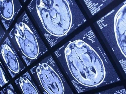 Излучающий ультразвук имплантат может помочь больным раком мозга